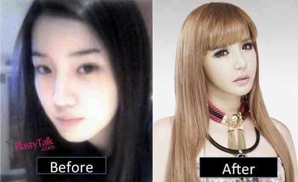 Before Plastic Surgery And After Park Bom 1