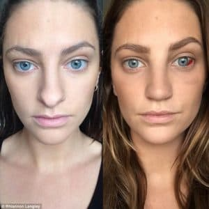 Before Plastic Surgery Take Blood 1