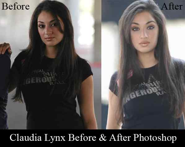 Claudia Lynx Before After Plastic Surgery 1