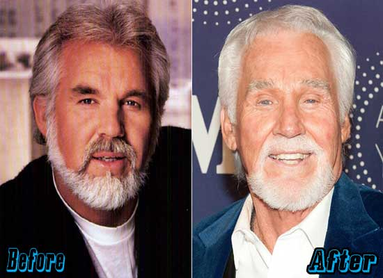 Kenny Rogers Image Before Plastic Surgery 1