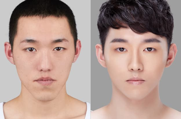 Kpop Men Before And After Plastic Surgery 1