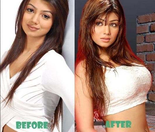 Pornstar Before And After Plastic Surgery 1
