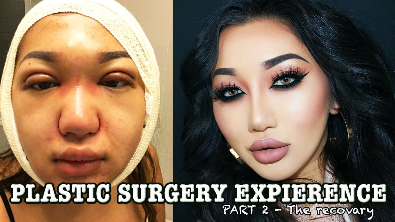 Xthuyle Before And After Plastic Surgery 1