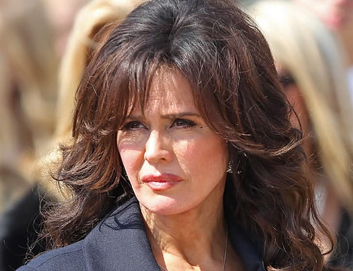 Before After Marie Osmond Plastic Surgery 1