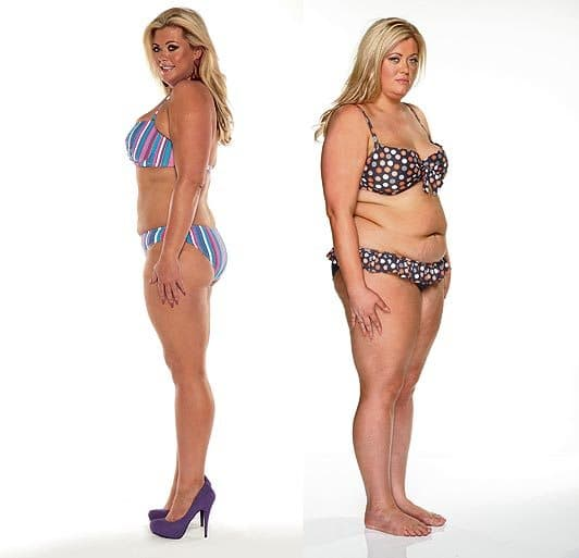 Weight Loss Plastic Surgery Before After0 1