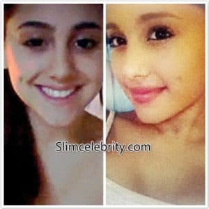 is lip injections plastic surgery 1