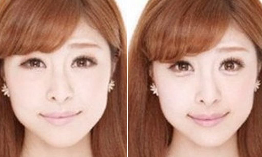 Korean Band Plastic Surgery Before And After photo - 1