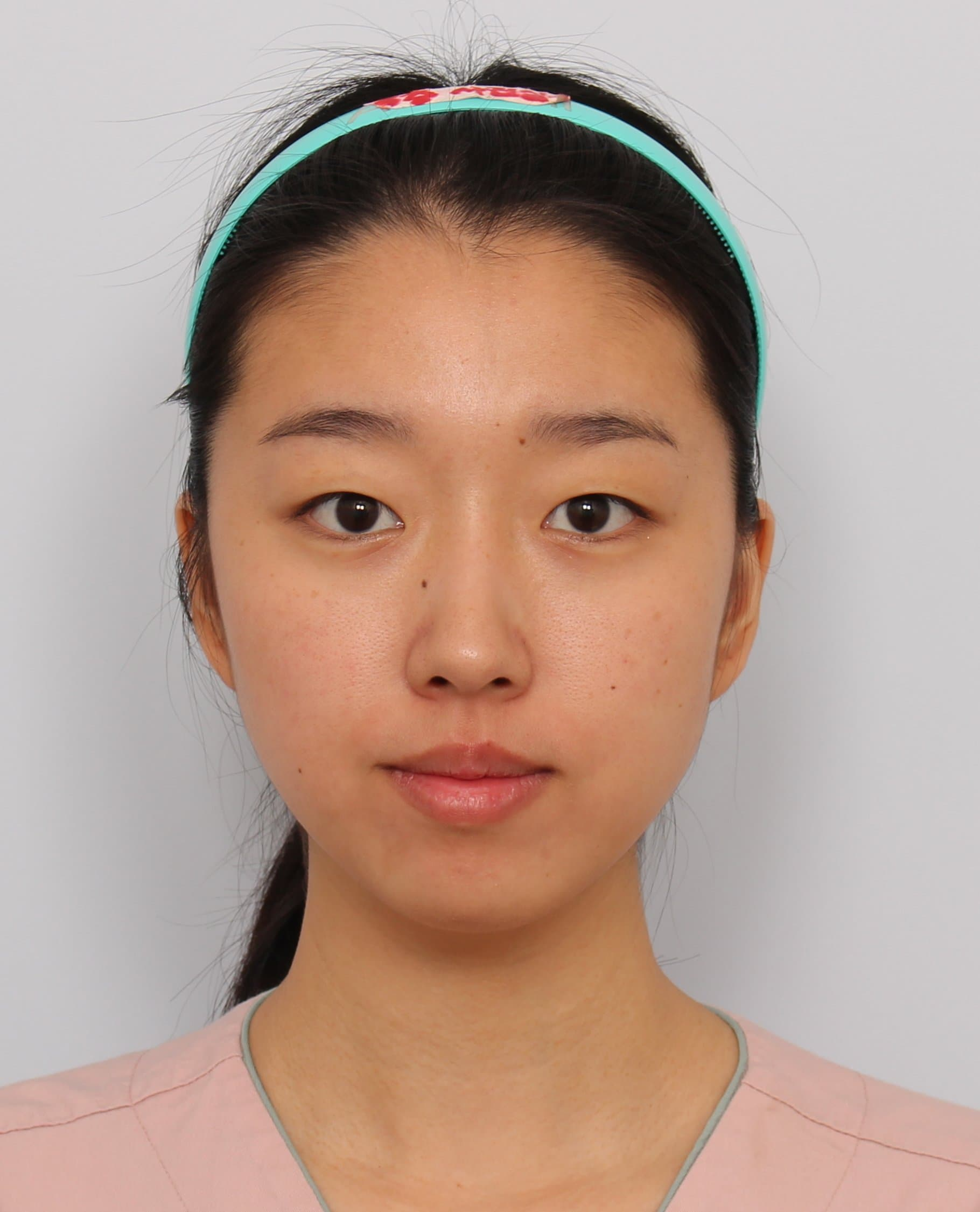 Sunnydahye Plastic Surgery Before And After photo - 1