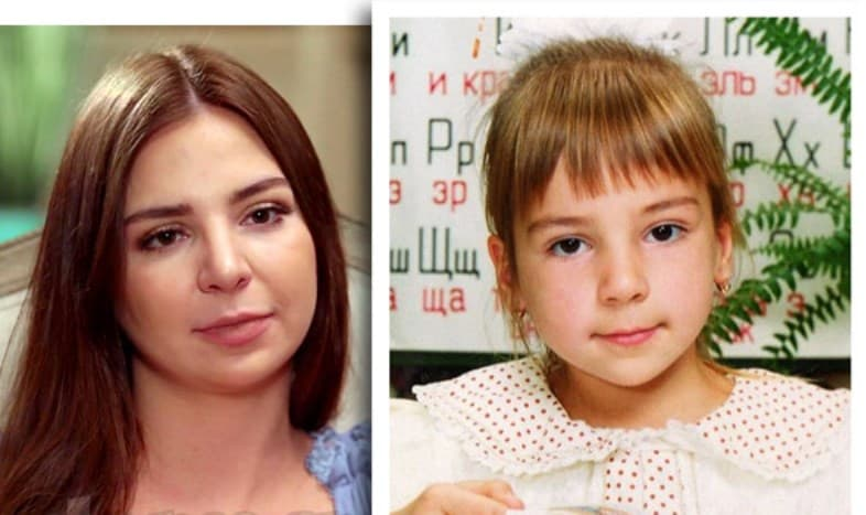 Anfisa Arkhipchenko Before Plastic Surgery 1