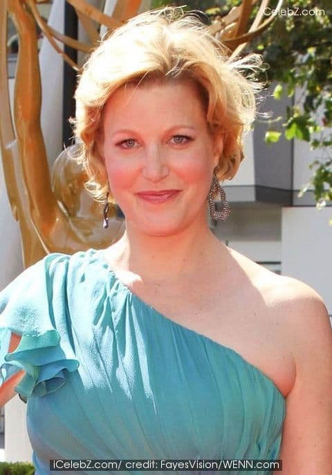 Anna Gunn Plastic Surgery Before And After 1
