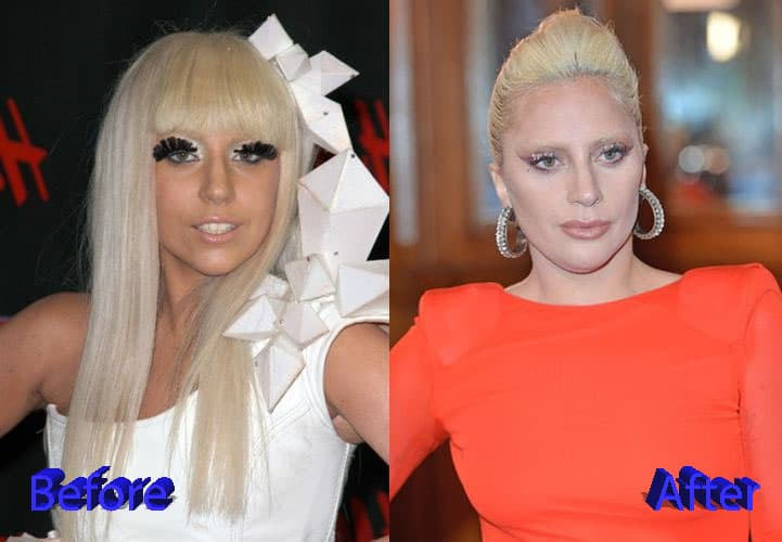 Lady Gaga Before And After Plastic Surgery 1