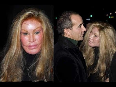 Lion Lady Plastic Surgery Before And After 1