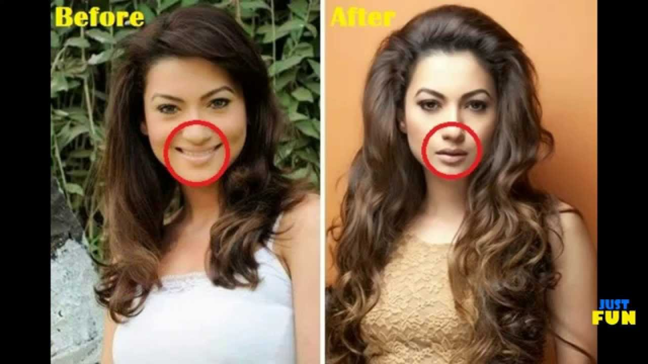 Venezuela Plastic Surgery Before And After 1