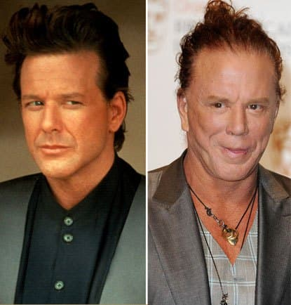Mickey Rourke Before After Plastic Surgery 1