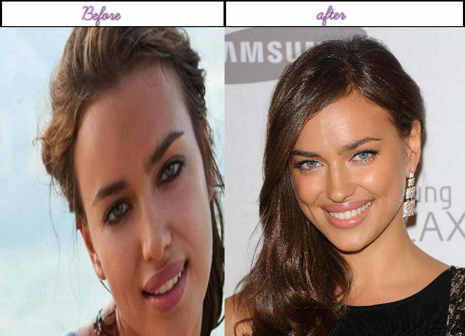 Actresses Before And After Plastic Surgery 1
