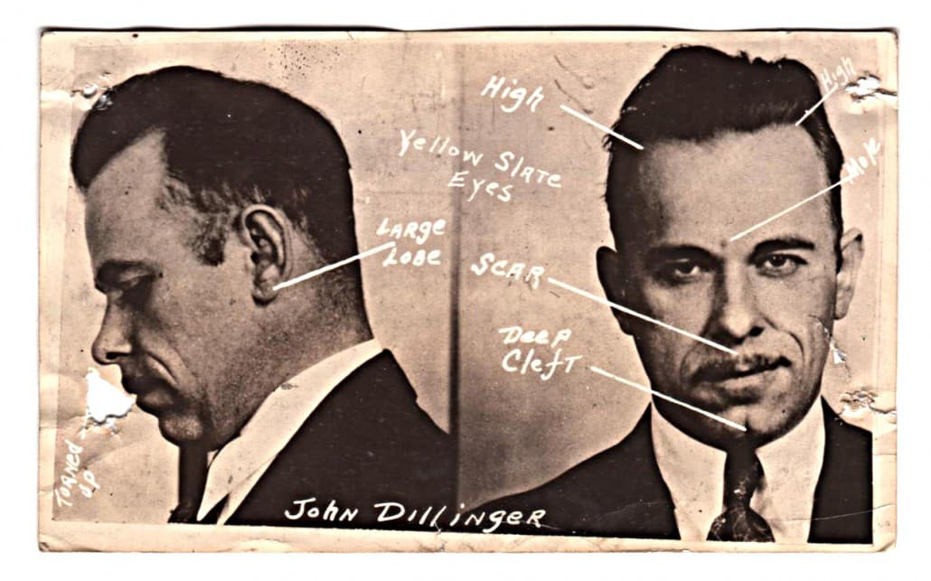 Dillinger Before And After Plastic Surgery 1