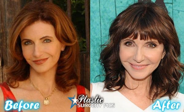 Images Of Before And After Plastic Surgery 1