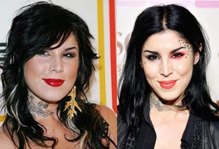 Kat Von D Before And After Plastic Surgery 1