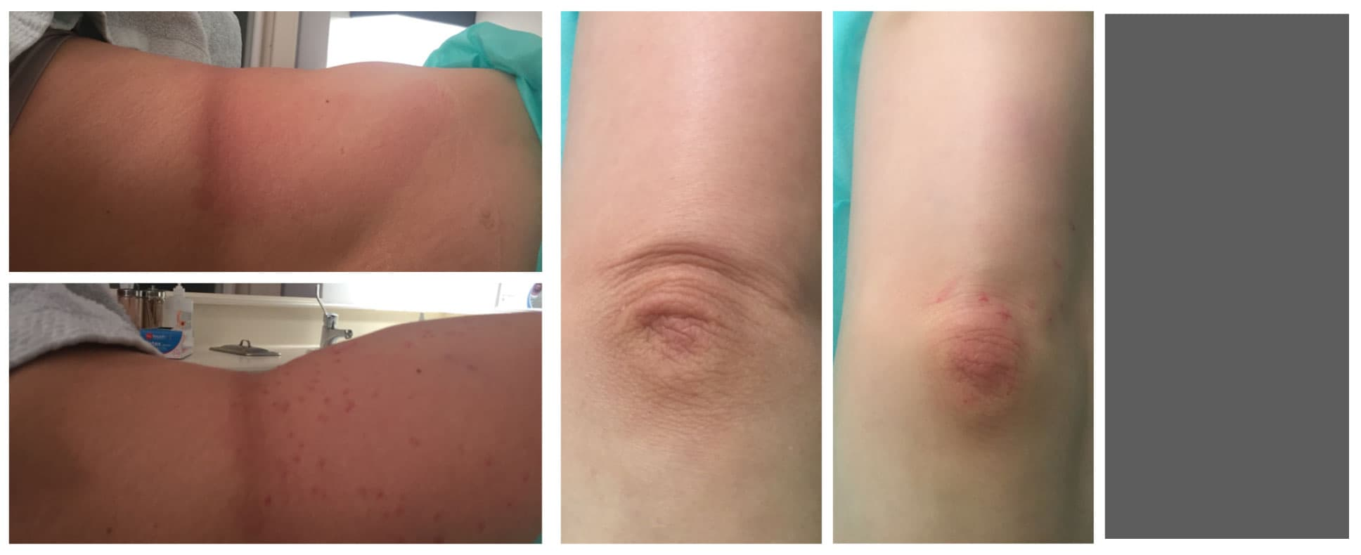 Plastic Surgery Knee Lift Before And After 1