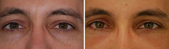 Under Eye Plastic Surgery Before And After 1