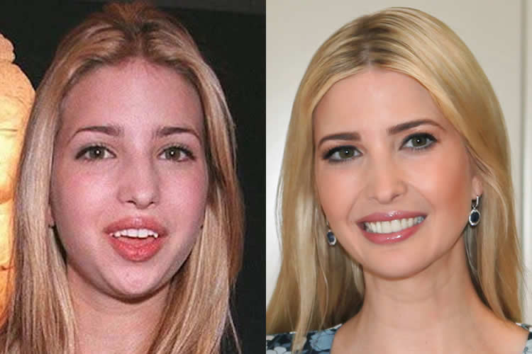 Melania Trump Before After Plastic Surgery 1