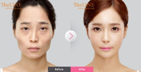 Before And After: Plastic Surgery Clinic 1