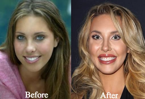 Chloe Rose Lattanzi Before Plastic Surgery 1