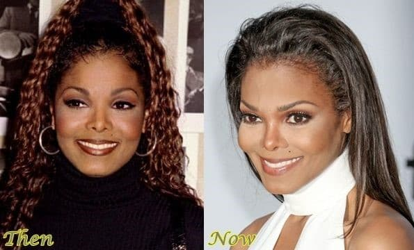 Janet Jackson Before After Plastic Surgery 1
