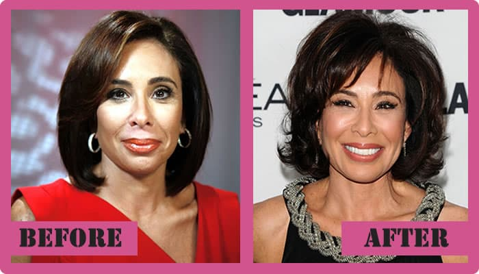 Jeanine Pirro Before Plastic Surgery Photo 1