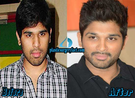 Ram Charan Before Andafter Plastic Surgery 1