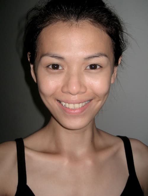 Singapore Plastic Surgery Before And After 1