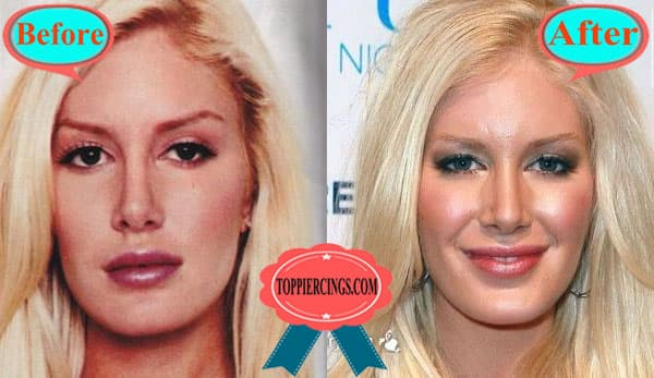 Back Scooping Plastic Surgery Before After 1