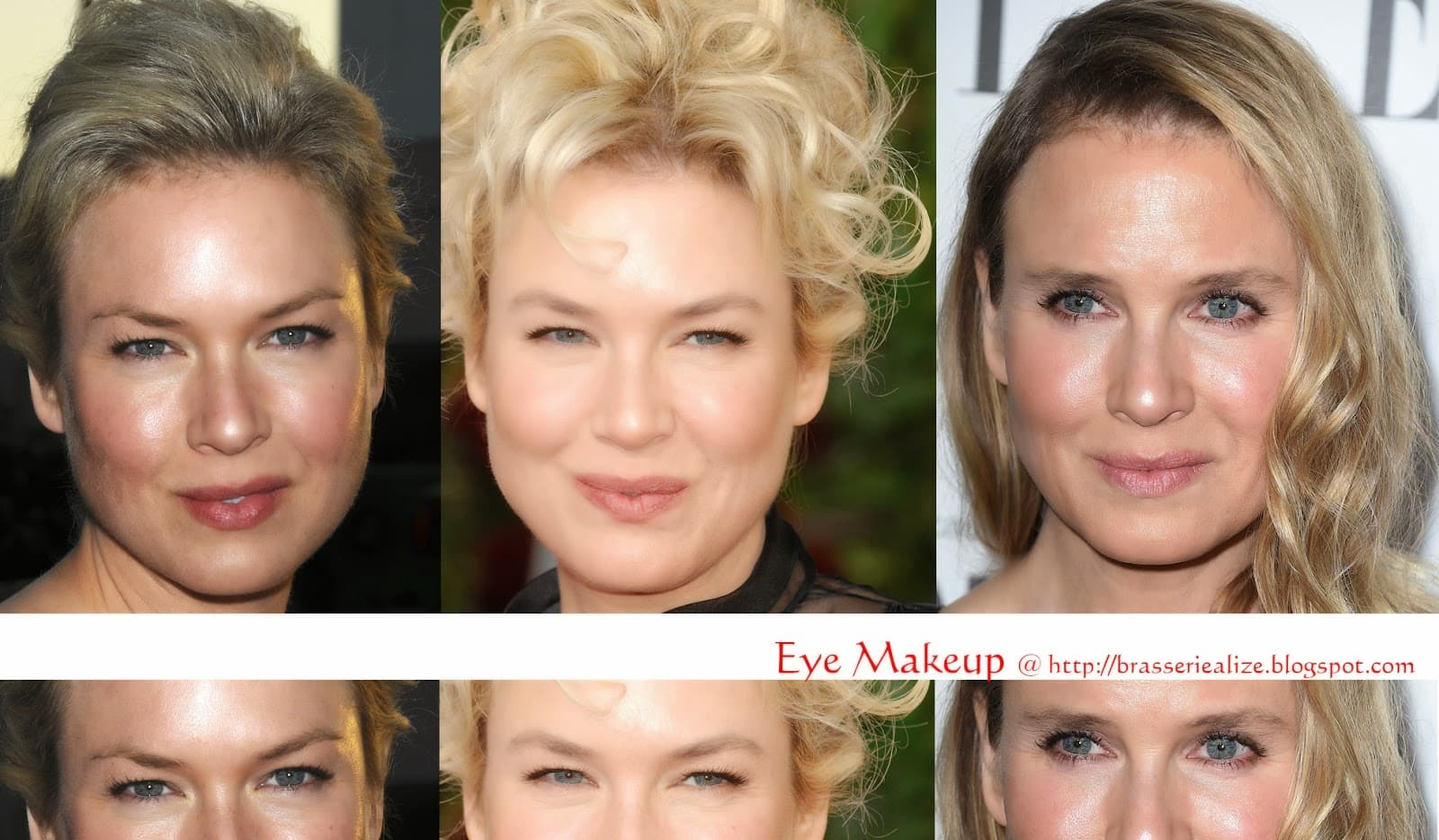 Bad Before And After Plastic Surgery Eyes 1