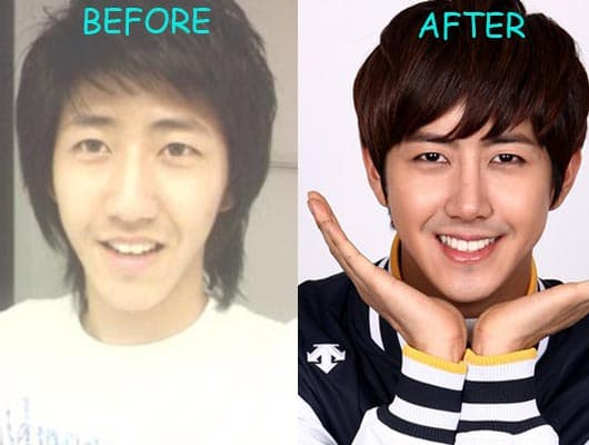 Dean Kpop Before And After Plastic Surgery 1