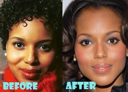 Fantastic Plastic Surgery Before And After 1