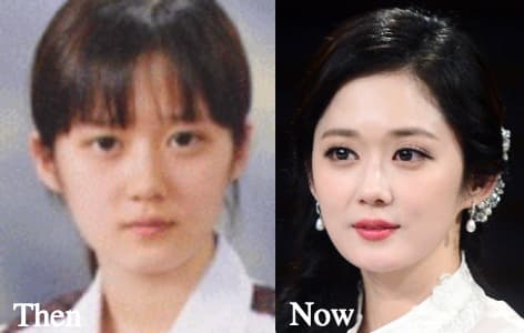 Jang Nara Before And After Plastic Surgery 1