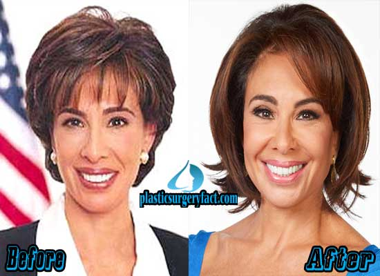 Jeanine Pirro Before After Plastic Surgery 1