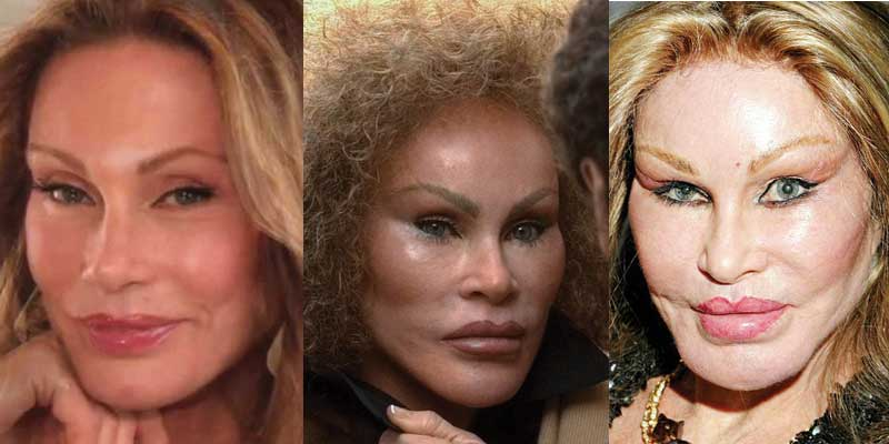 Ruined By Plastic Surgery Before And After 1