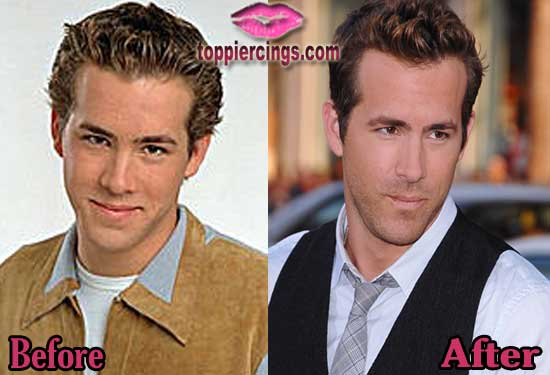 Expensive Plastic Surgery Before And After 1