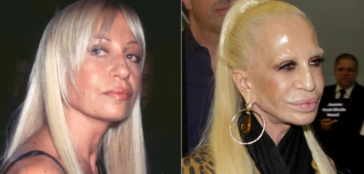 Lindsay Lohan Before After Plastic Surgery 1