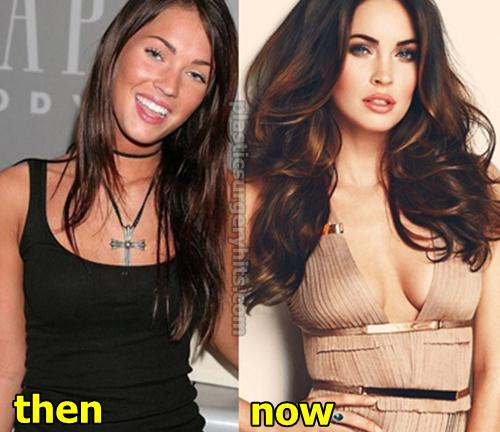 Liv Tyler Before And After Plastic Surgery 1