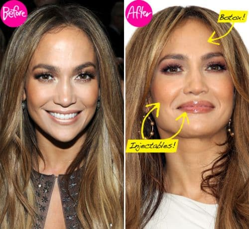 Plastic Surgery Before And After For Hands 1