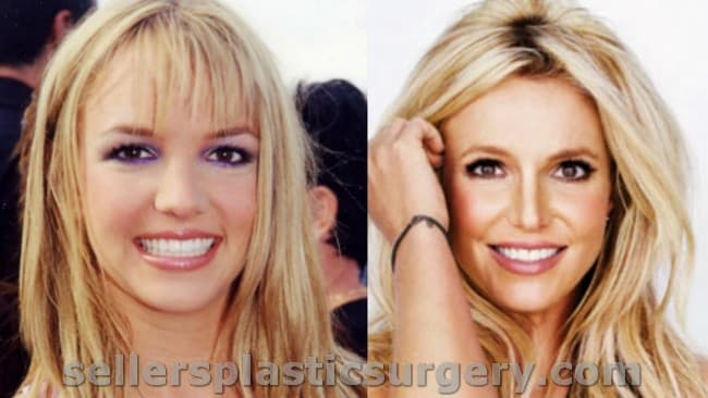 The Worst Plastic Surgery Before And After 1