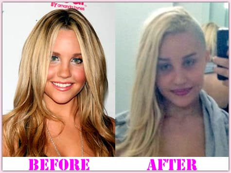 Amanda Bynes Before And After Plastic Surgery photo - 1