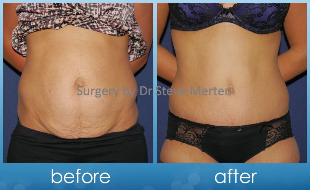 Belly Button Plastic Surgery Before And After photo - 1