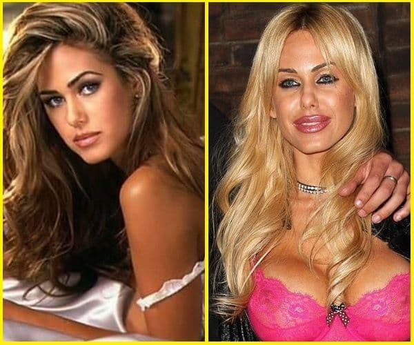 Extreme Plastic Surgery Before And After Pics photo - 1