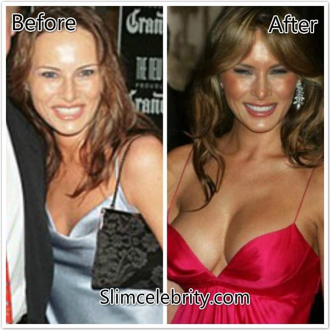Ivanka Trump Plastic Surgery Before And After photo - 1