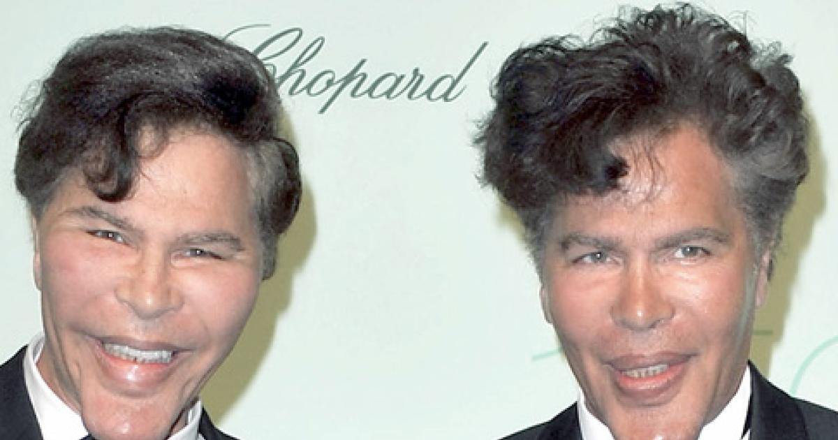 Korean Plastic Surgery Before And After Twins photo - 1