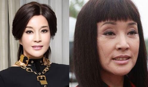 Liu Xiaoqing Plastic Surgery Before And After photo - 1