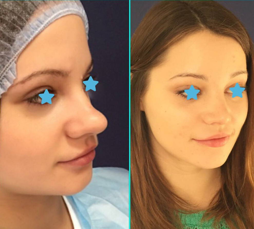 Plastic Surgery Before And After Bulbous Nose photo - 1